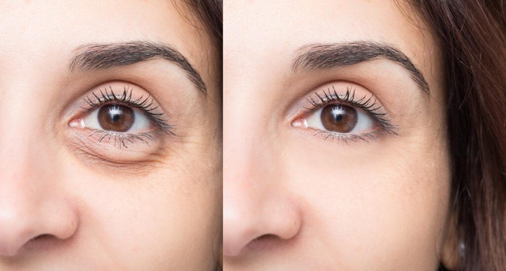 Eyelid Surgery Scottsdale