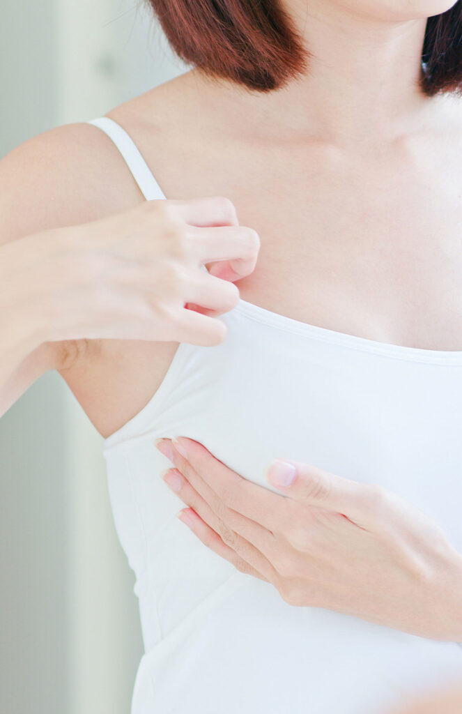 What Is Capsular Contracture